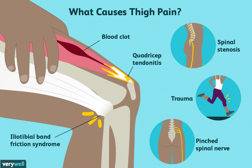 thigh pain